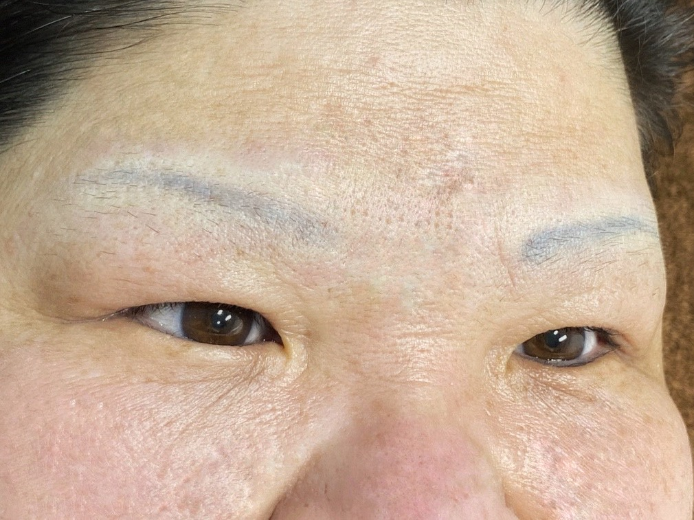 blog misty brow correction before