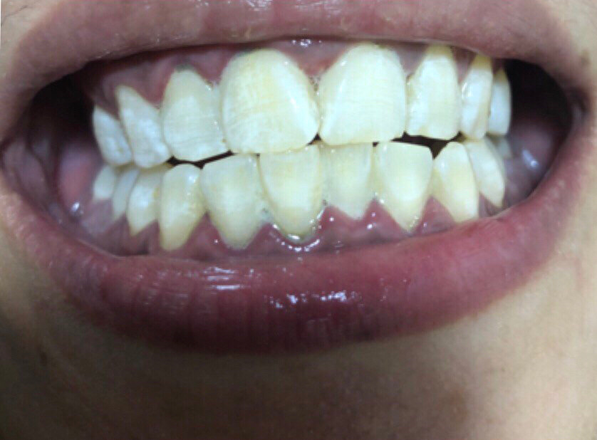 others led teeth whitening after