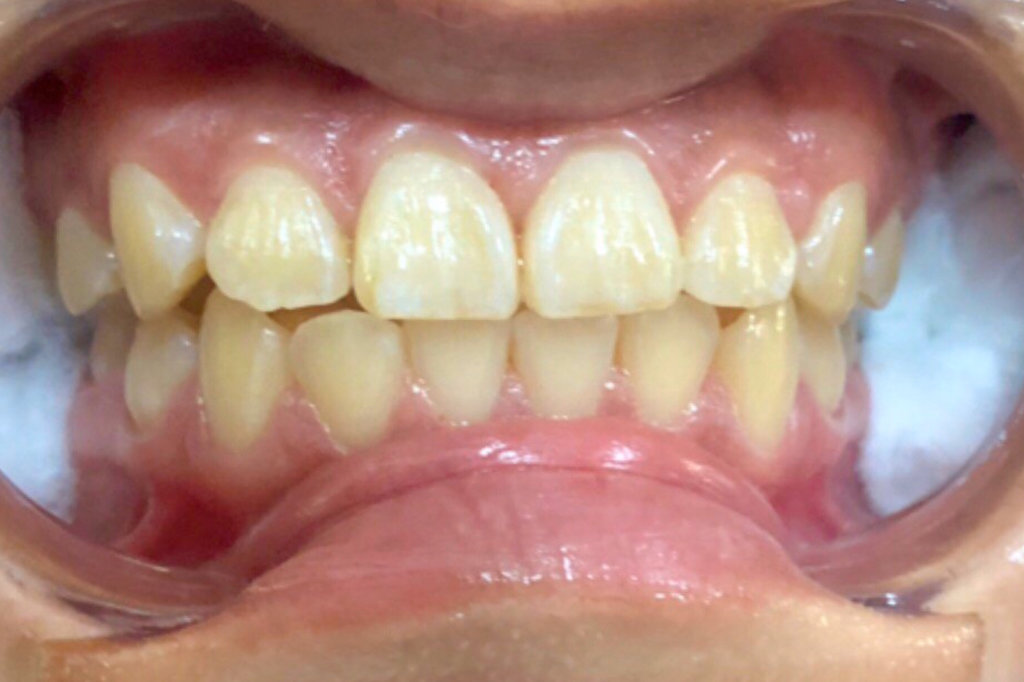 others led teeth whitening before 1
