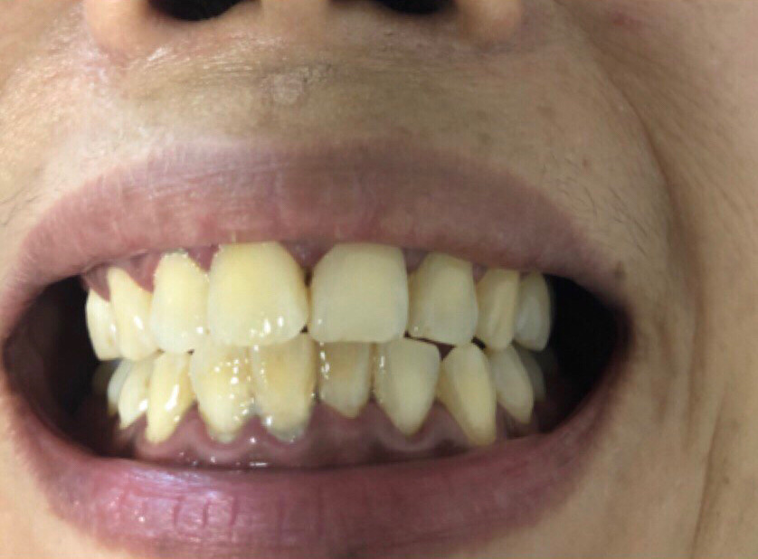 others led teeth whitening before