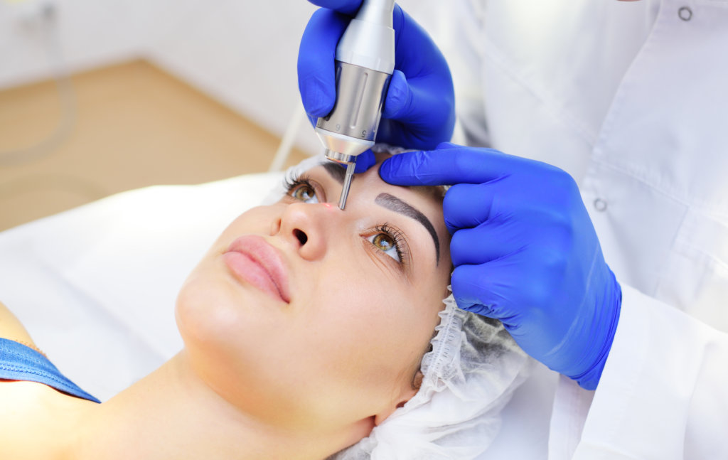 others mole removal
